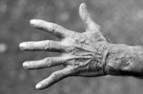trigger finger release surgery