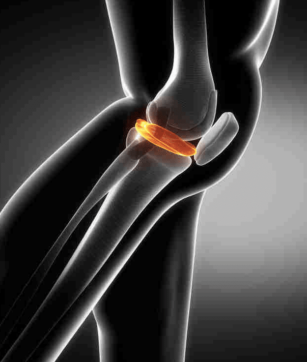 meniscus tear is surgery necessary