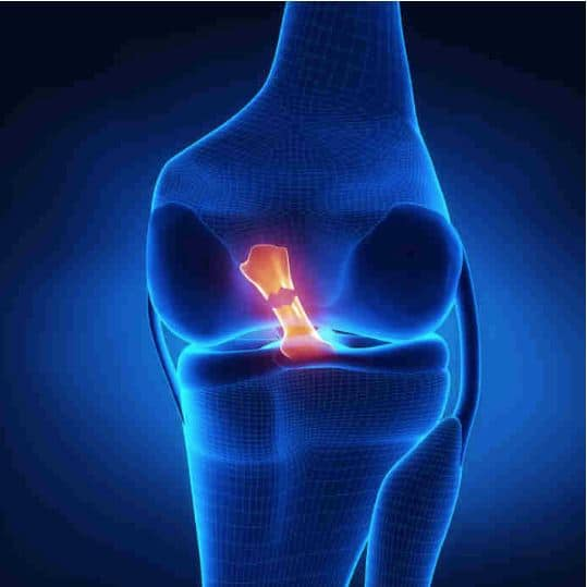 acl injury recovery