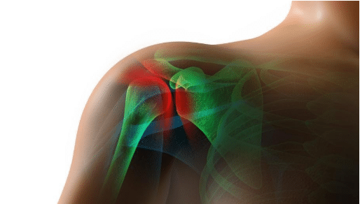does stem cell therapy work for rotator cuff tears